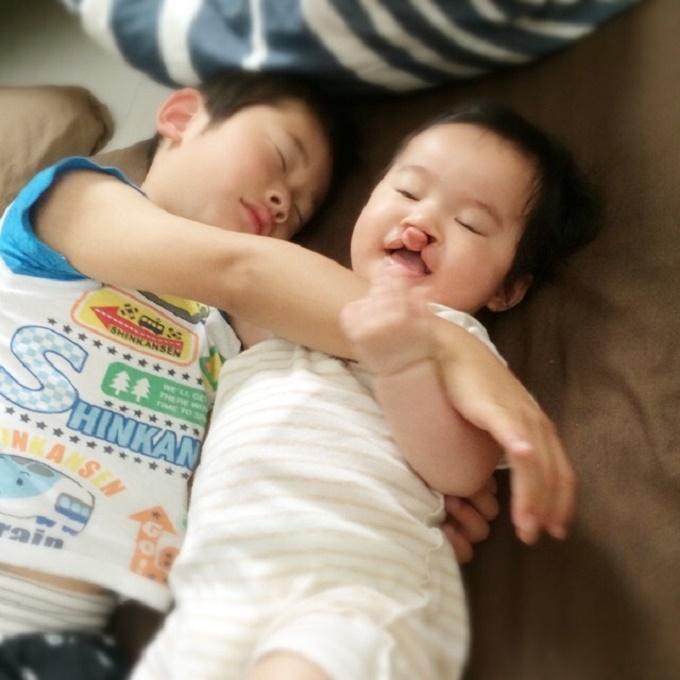 口唇口蓋裂の手術を受ける前の小菅さんのお子さん。本当に幸せそうな寝顔です