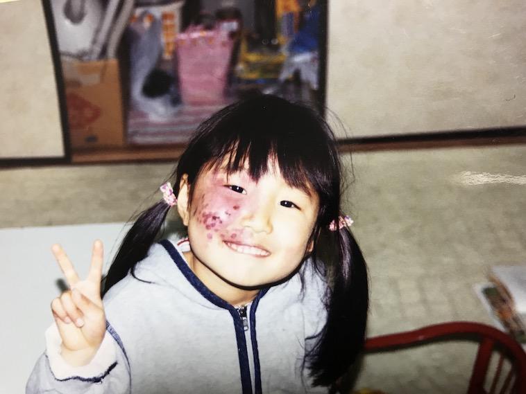 【写真】ピースサインをみせる幼少期のあやさん。