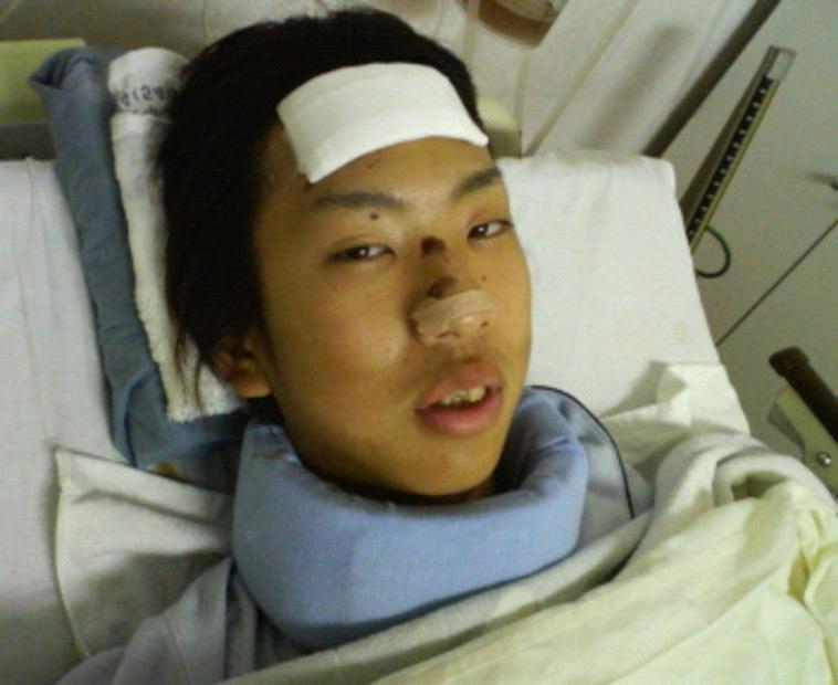 【写真】事故直後の入院している時のみよたつやさん。額には包帯がまかれ、首も固定されている。表情はうつろげで、鼻には事故当時にできたと思われる傷がみえる。