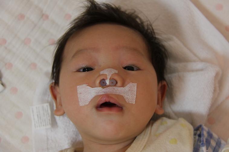 【写真】手術後のりょうくん。鼻や口元に治療の跡が見られる